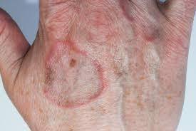 12 semne ca ati putea suferi de diabet zaharat - Dr. Mihai Lupu